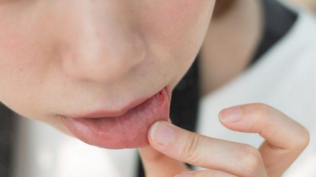 痛い口内炎はシールで早く治す!実際に使っているおすすめ商品や予防するための方法を紹介