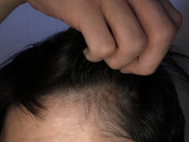 ミノキシジルを1年使った状態の髪の毛